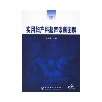 实用妇产科超声诊断图解(cd)