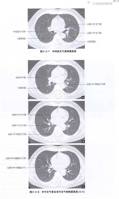 肺结核性肉芽肿手绘图